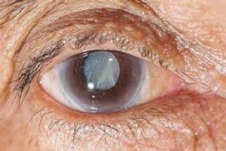 بیماری آب مروارید چشم