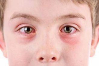 آلرژی های فصلی