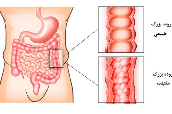 Image result for التهاب روده