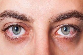 بیماریهای چشمی را جدی بگیریم