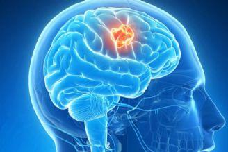 در برنامه نبض سه شنبه یكم آبان درباره تومور مغزی گلیوبلاستوما صحبت میكنیم