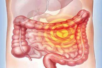 در برنامه نبض یكشنبه ششم آبان درباره سرطان لوله گوارشی صحبت شد