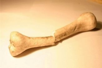 ترمیم شکستگی های استخوانی با نانو
