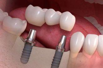 در برنامه نبض سه شنبه پنجم شهریور درباره نگهداری دندان بعد از ایمپلنت و رژیم مدیترانه ای صحبت شد